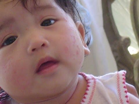 Cetaphil Moisturizing Lotion For Newborn Baby Dry Skin