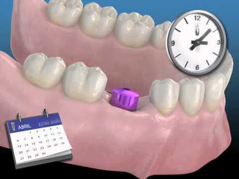 Cuanto cuesta un implante dental en espana