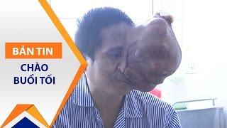 Người đàn ông có khối u to hơn mặt | VTC1