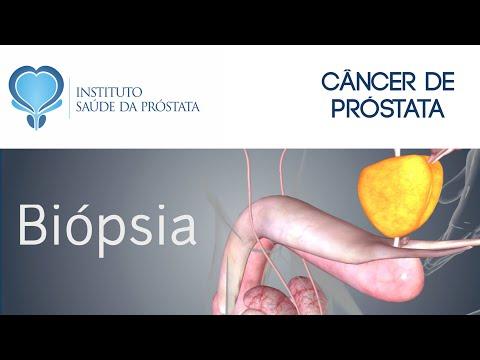 Biópsia da próstata. Existe risco de impotência sexual?