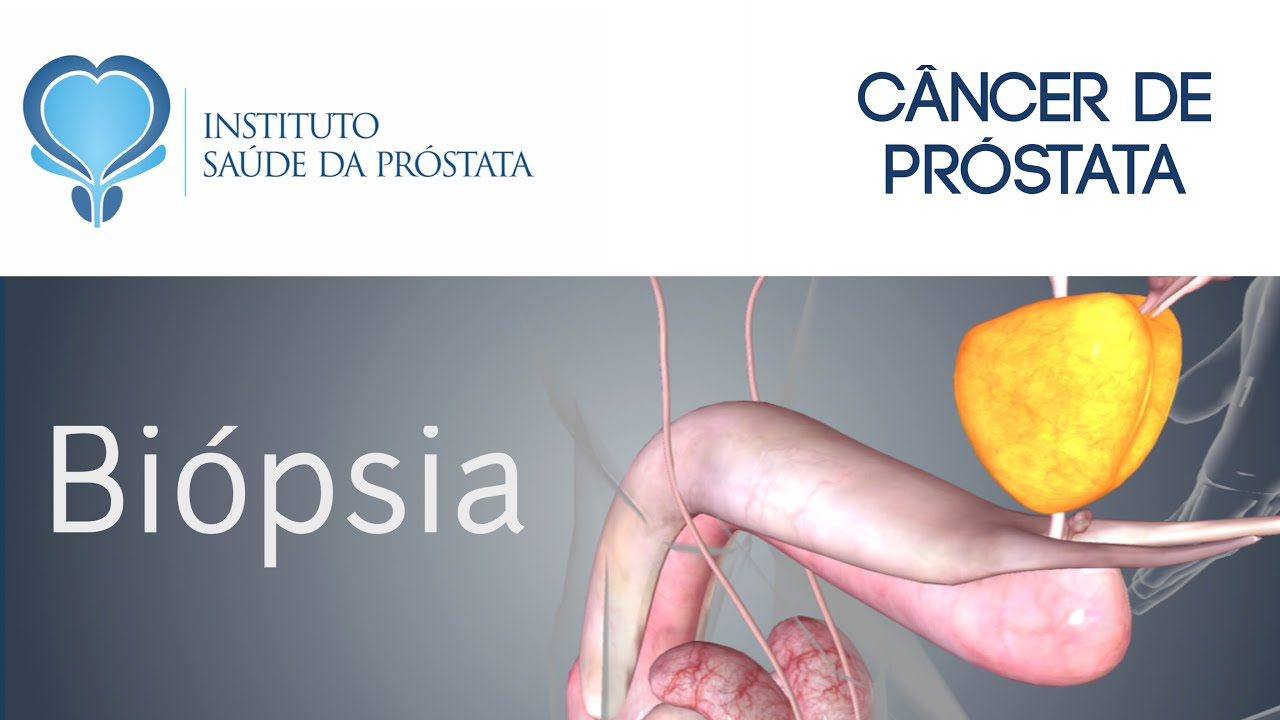biopsia da prostata anestesia