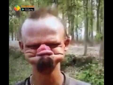Funny Man With No Teeth