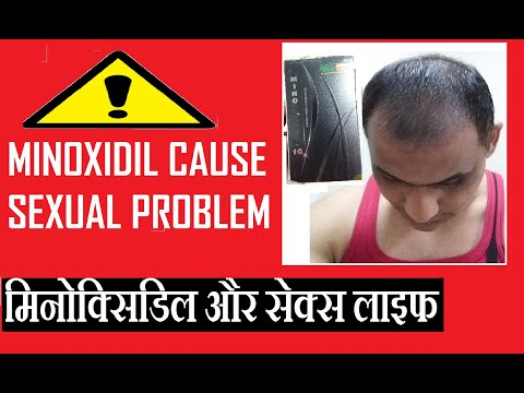 minoxidil-side-effects-|-cause-sexual/erectile-dysfunction-in-men?