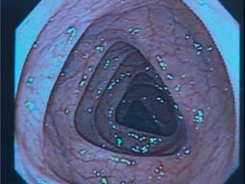 Colonoscopy and Death Rates