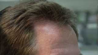 FUE Video Results - Patient with progressive hair loss - Dr. Cole Atlanta