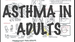 Adult Asthma - Overview (signs and symptoms, pathophysiology, investigations and treatment)