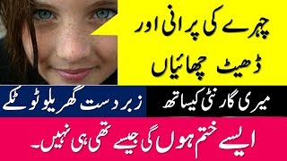 Acne Scar Removal || Freckle Removal | Chehre Ki chaiyan khatam Karna | Beauty Tips In Urdu \ Hindi