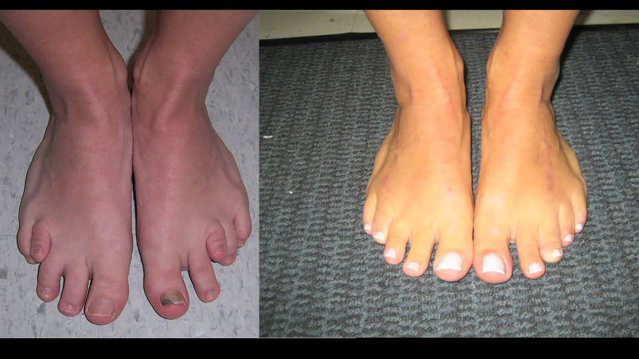 Limb Lengthening And Toe Lengthening With Dr Rozbruch