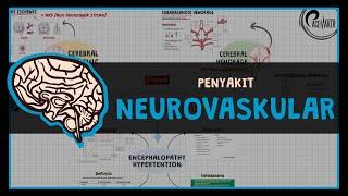 Pada orang terkena stroke ringan terjadi secara tiba-tiba dan serupa dengan gejala stroke pada umumn.