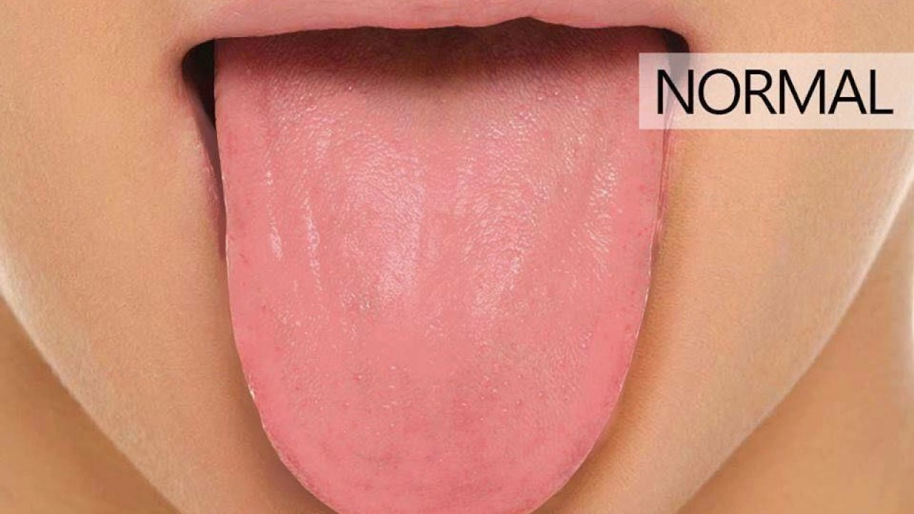 10 Types Of Tongue That Define Your Healthhealth Care Youtube