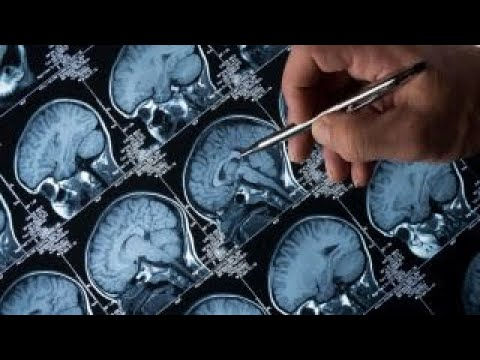 Diabetes drug may reverse Alzheimer's symptoms