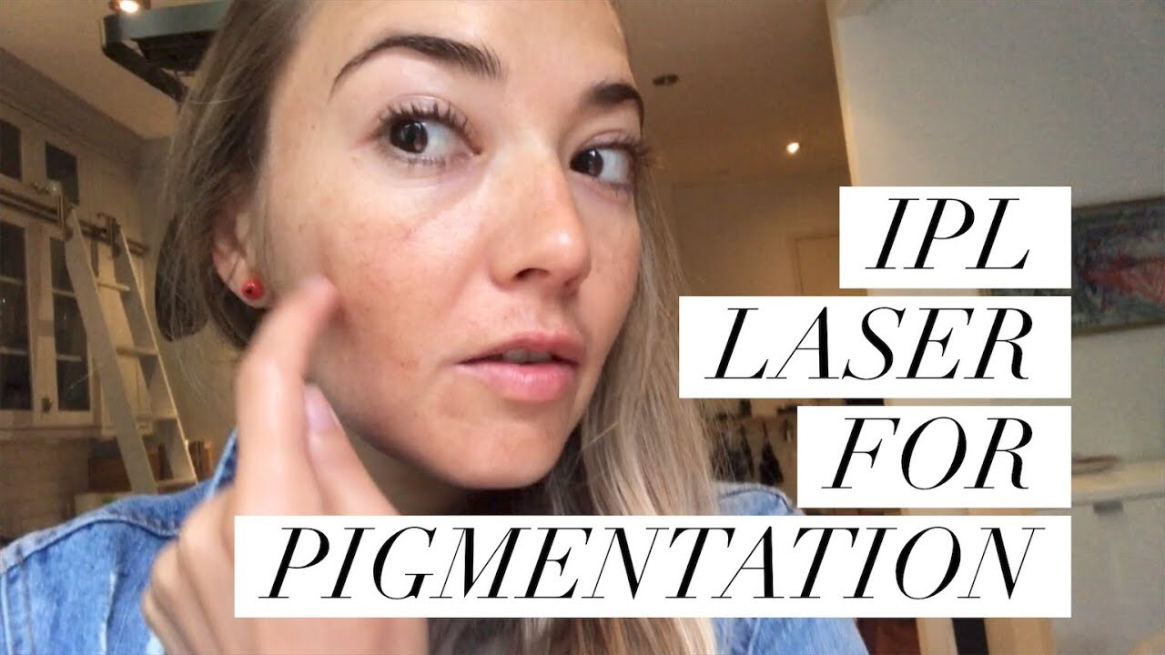 IPL LASER FOR PIGMENTATION | The Beauty Surfer | Dark Spots removal