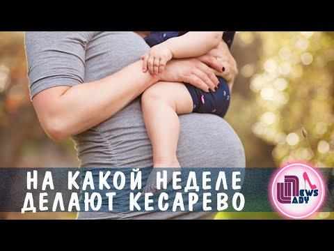 На какой неделе беременности делают кесарево сечение