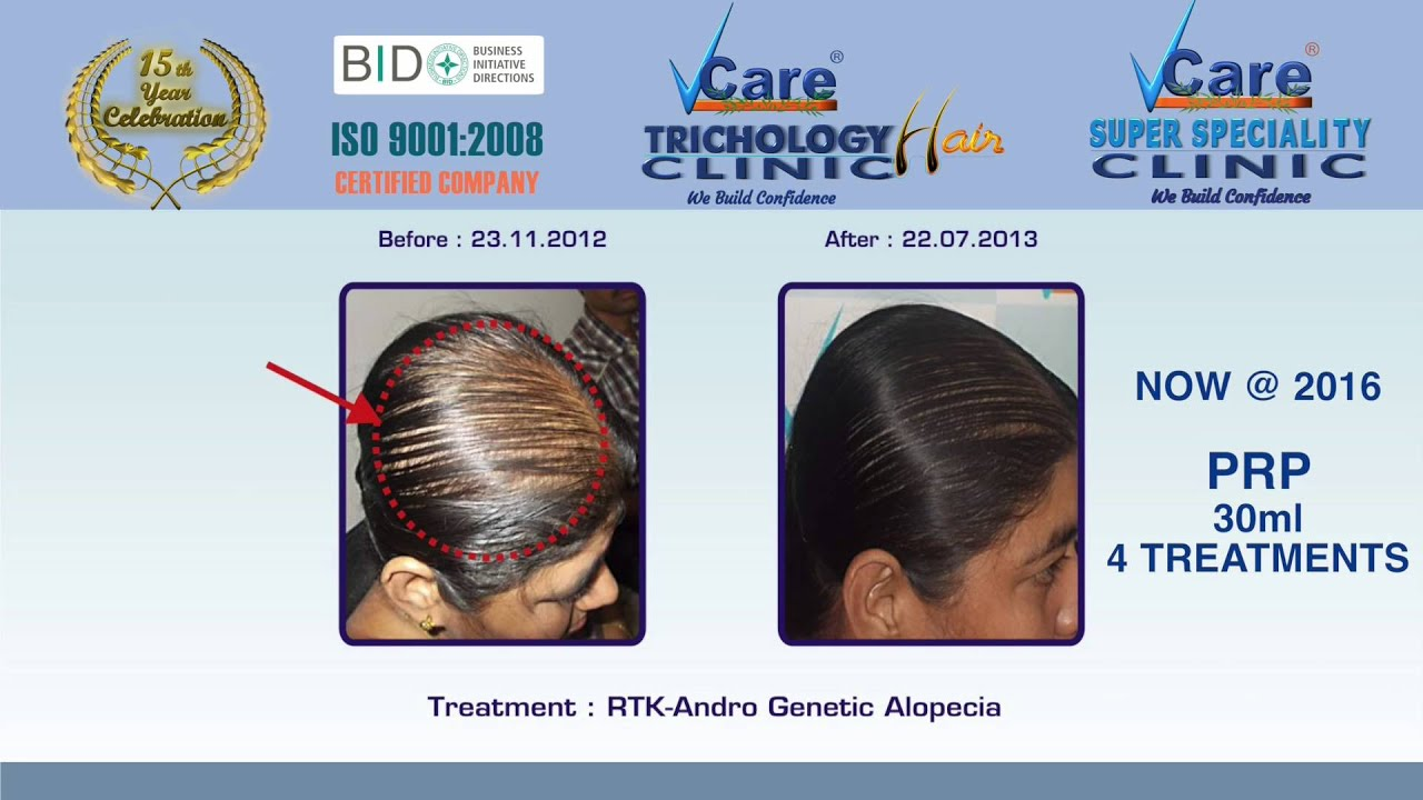 VCARE Stem Cell before after with latest AFT