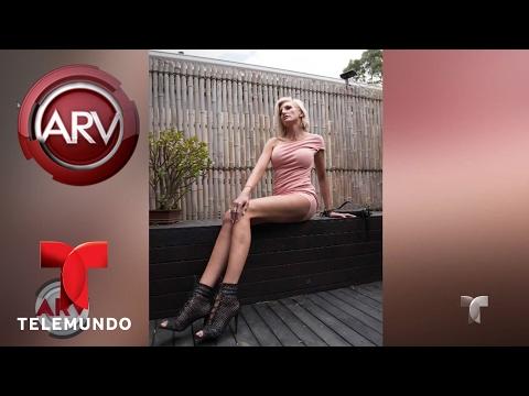 VIDEO: CONOCE A LA MUJER CON LAS PIERNAS MÁS LARGAS DEL MUNDO | AL ROJO VIVO | TELEMUNDO