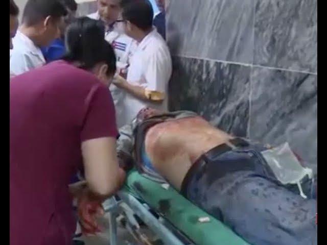 Nuevo accidente de transito deja un muerto y decenas de heridos en Cuba
