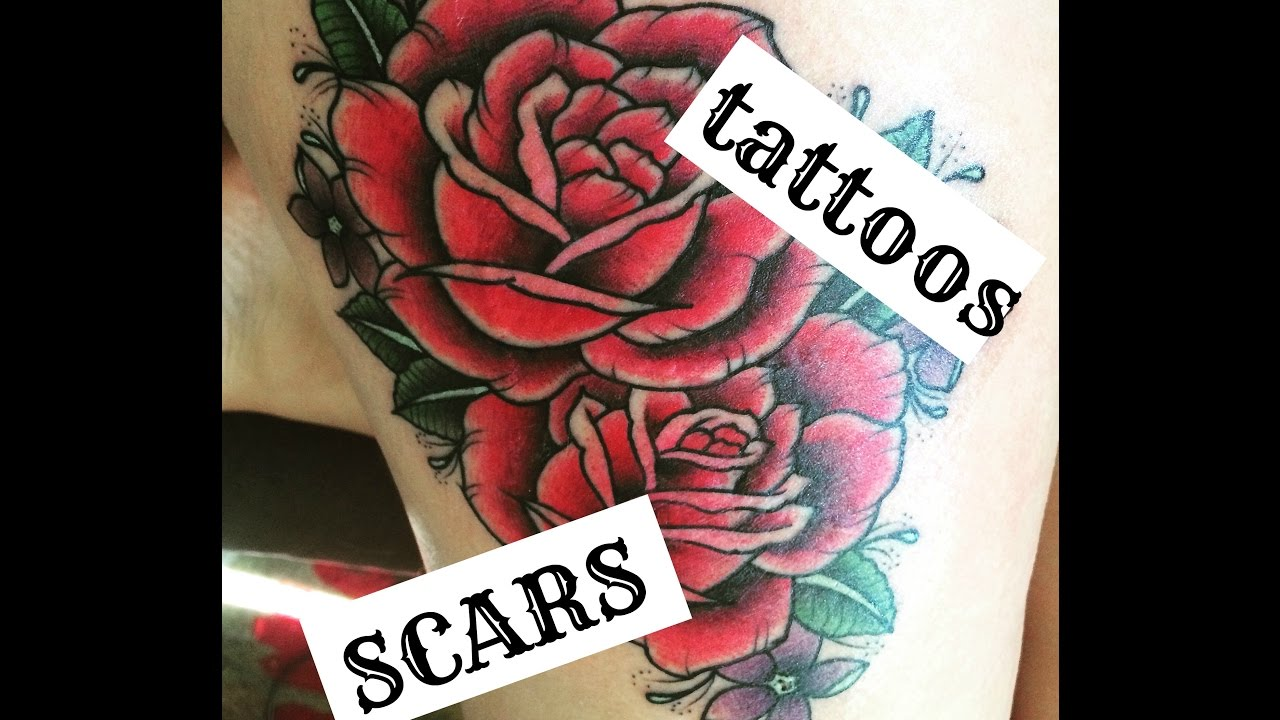Tattooing Over Scars forecast