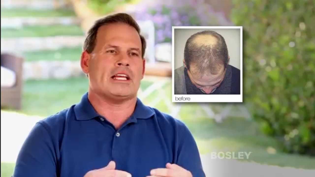 Bosley Hair Restoration Patient Testimonial Mike K Youtube