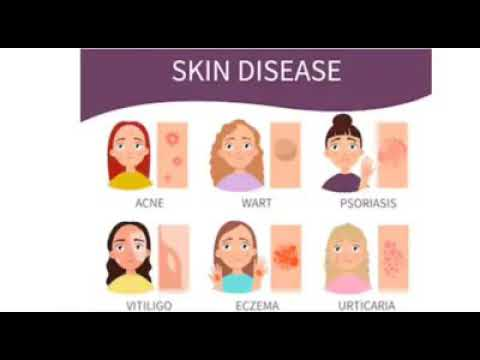 eczema meaning in bengali)