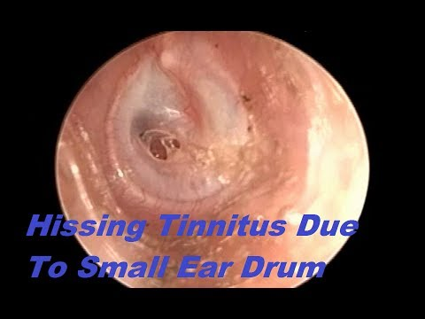 hissing-tinnitus-due-to-small-ear-drum-perforation-following-asom