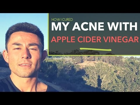 my-story:-how-i-cured-my-acne-with-apple-cider-vinegar