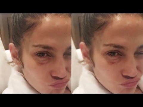 Jennifer Lopez Explains Her Black Eye: 'I'm a Fighter Too'