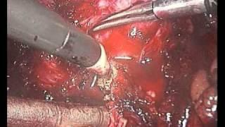 DrPaoloParma.com: Prostatectomia Radicale Laparoscopica Extraperitoneale