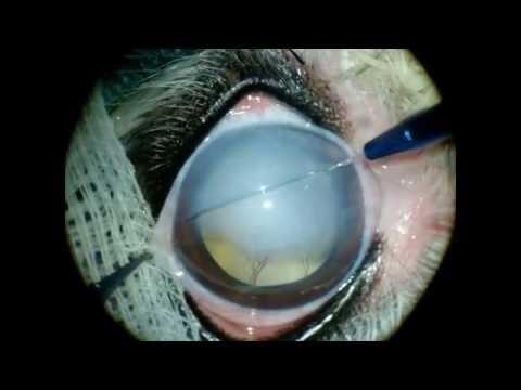 Gundersen Flap in severe corneal edema
