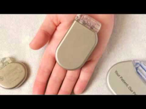 How pacemakers and implantable defibrillators are implanted and used