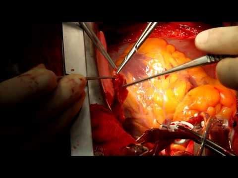 Doç.Dr.Tansel TÜRKOĞLU Bypass ameliyatı
