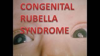 Congenital Rubella Syndrome