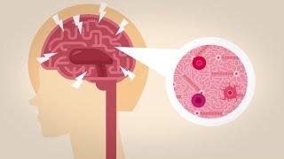 Roztroušená skleróza | Problémy se sociální sítí - 1. díl