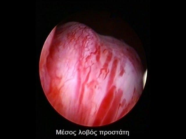 Διουρηθρική εκτομή μέσου λοβού προστάτη, Bouzalas-urology