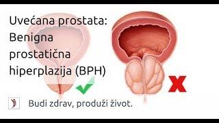 tumor benigno prostata sintomas