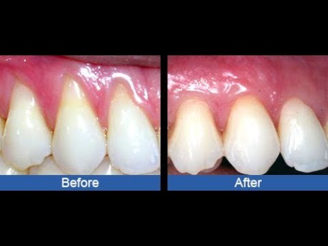 TREAT RECEDING GUMS NATURALLY AT HOME WITHOUT VISITING THE DENTIST