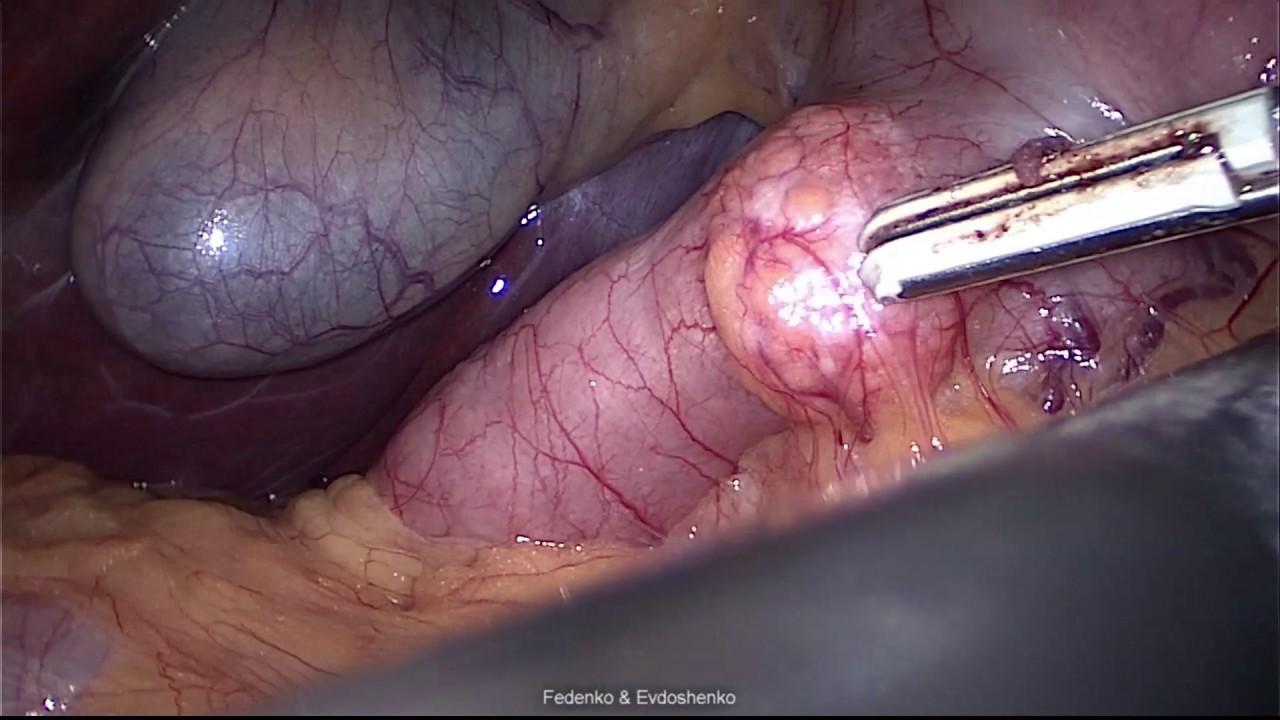 Ectopic pancreas in the duodenal bulb - YouTube