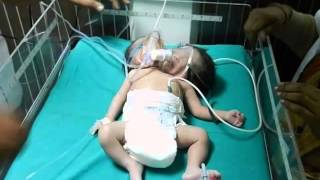 Two-Headed Conjoined Twins Born in India (PICS) (3/12/14)