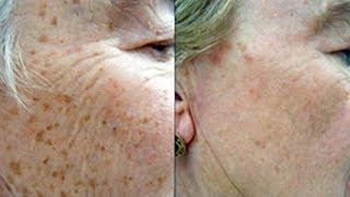 Способ, который поможет удалить коричневые пятна на коже
