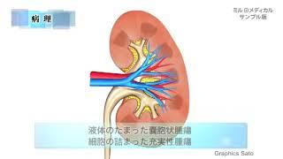 腎がん(腎細胞がん)/ミルメディカル 家庭の医学 動画版 thumbnail