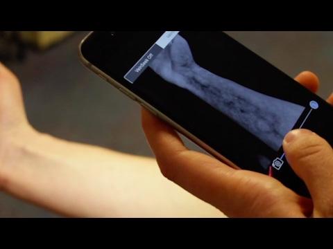 VeinSeek Pro: Vein Finder App for iPhone