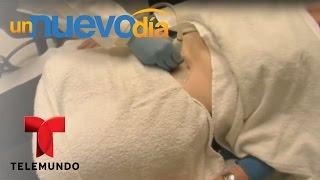 Síndrome de Ovario Poliquístico, causas y consecuencias   Un Nuevo Día   Telemundo