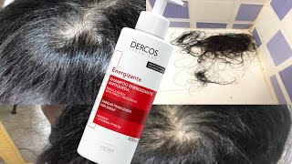 Poderoso Shampoo Anti-Queda – Uma Incrível Solução