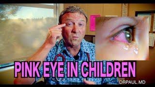 Pink Eye In Children | Pediatric Advice