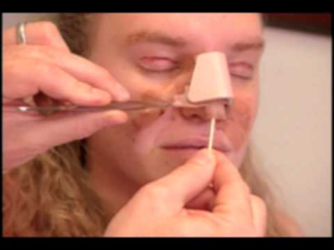 Extreme Makeover | Dr. Garth Fisher Performs A Nose Job, Liposuction And Ear Pinning On Christina