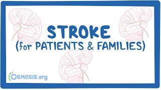 Stroke (for patients & families)