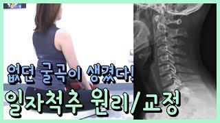 [Tip] 병원마다 다른 일자척추 진단 / 원리 / 교…