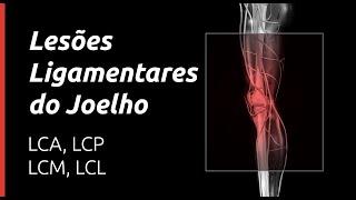Ligamentares na como perna lesões tratar