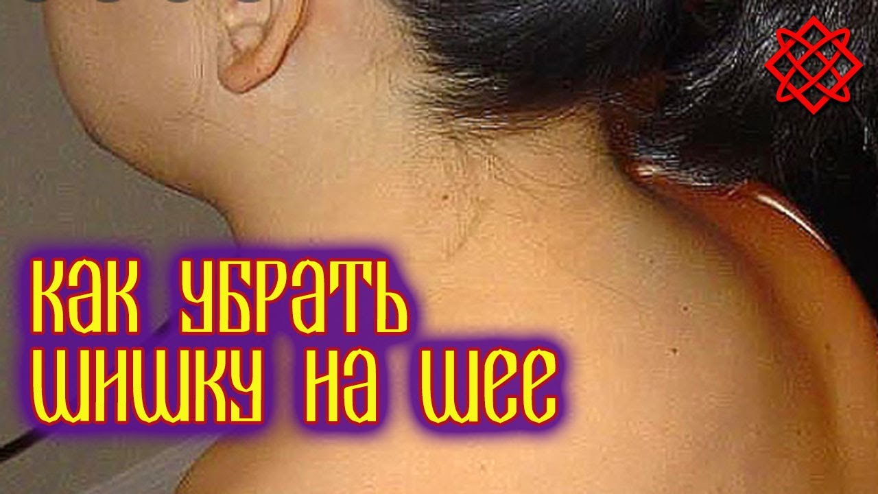 Шишка на шее. Вдовий горбик, холка, липома, атерома - как определить и как избавиться