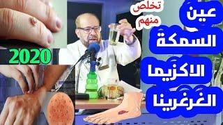 {جلدية}(٥) علاج عين السمكة و الاكزيما و الغرغرينا بالأعشاب والنباتات الطبية_دكتور جودة محمد عواد