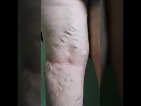 tratamentul cu varicoză al lui alla